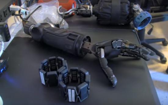 "BT丨他的机械臂可由思维控制:""半机械人""的生活好过吗?"